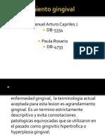 agrandamientogingival-100319212324-phpapp01
