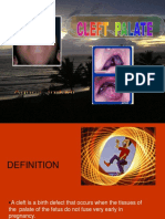 Teori - Cleft Palate