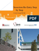 Antegrade Dissection Re Entry Step by Step