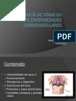 Radiografía de Tórax en Las Enfermedades Cardiovasculares