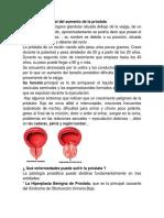 Tratamiento Natural Del Aumento de La Próstata
