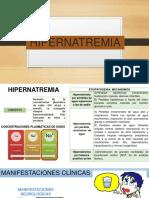HIPERNATREMIA - DIAPOS