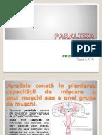 paralizia