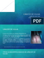 Cancer de Vulva