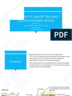 Treatment of Clavicle Fractures
