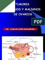 Tumores Benignos y Malignos de Ovario