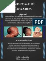 Sindrome de Edwards