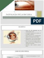 09 - Patologia de La Uvea