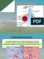 asmabronquial-170207213133