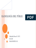 Radiologia Del Torax d II