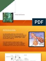 enfermedadespulmonaresintersticiales-170408035706