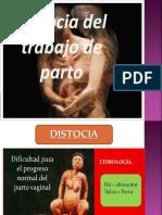 DISTOCIA-milu
