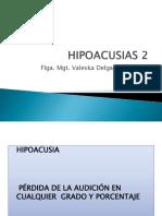 HIPOACUSIAS 2