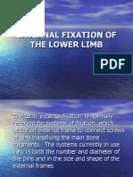 External Fixation of the Lower Limb 2