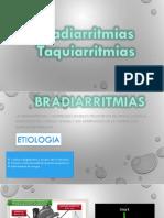BRADIARRITMIAS [Autoguardado].pptx