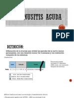 RINOSINUSITIS AGUDA