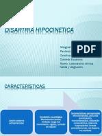 Disartria Hipocinetica