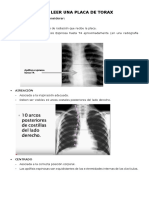 Como Leer Una Placa de Torax y Estructuras Basicas Anatomicas
