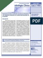 Caso Clínico 11. Pseudomonas Aeruginosa