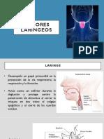 Tumores laríngeos