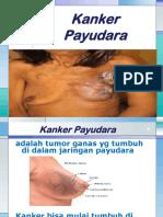 kanker-payudara.pptx