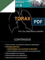Torax Patologico 1 Neumona