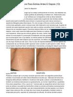 GSA SER - Icatricure Para Estrias Antes E Depois (13)