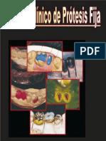 Manual Clínico De Prótesis Fija.pdf