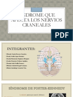 Equpo 4 Sindromes Que Afectan Nervios Craneales