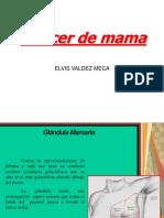 Cancer de Mama Elvis [Autoguardado]