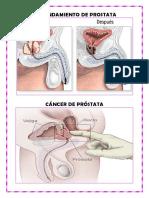 Agrandamiento de Prostata