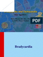 Bradycardia and Tachycardia