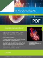 Arritmias-cardiacas-1