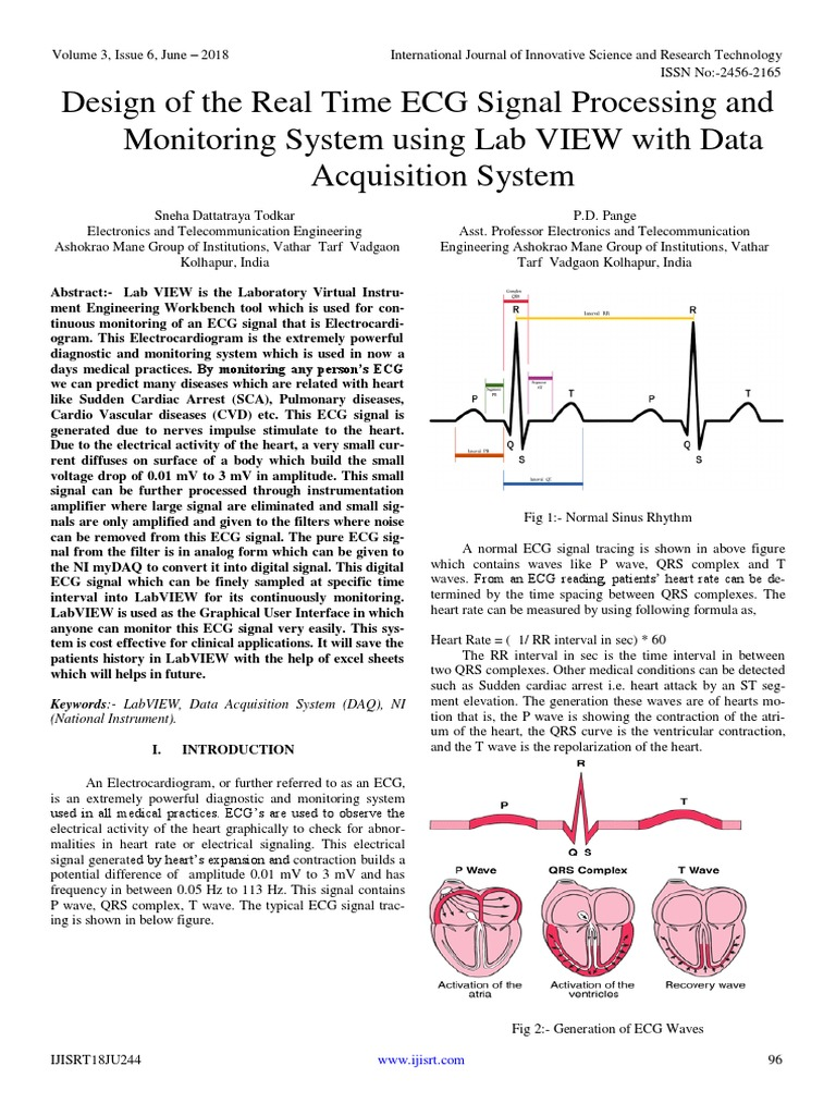 Design of the Real Time ECG Signal Processing and Monitoring