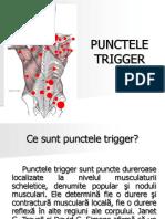Trigger-Point.ppt