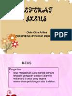 117489220-ileus-referat.pptx