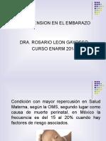 Hipertensión_en_el_embarazo.ppt