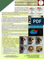 Viscuso, Matías Nicolás - Anatomía Quirúrgica del Seno Frontal en el Trauma Craneofacial
