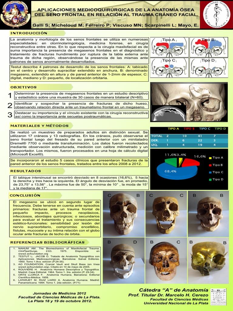 Viscuso, Matías Nicolás - Anatomía Quirúrgica del Seno Frontal en el ...