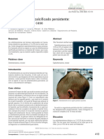 Nota Clinica Cefalohematoma