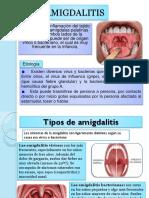 amigdalitis, faringitis, parotiditis