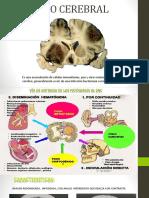 Absceso Cerebral en Tomografía Cerebral (TC)