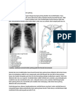 radioanatomi jantung 1