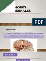 TUMORES CEREBRALES (1).pptx