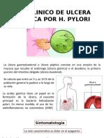 Caso Clinico de Ulcera Gastrica Por h
