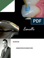Cementación Convencional y Adhesiva 1