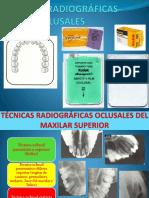 Tecnica Rx Oclusal