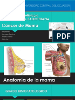 radioterapia en Cancer de Mama