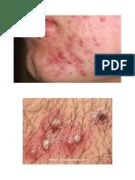 gambar folikulitis