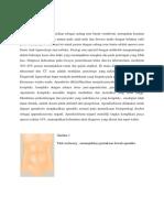 Abstrak apendisitis